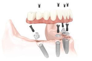 Имплантация all on 4 в разборном виде