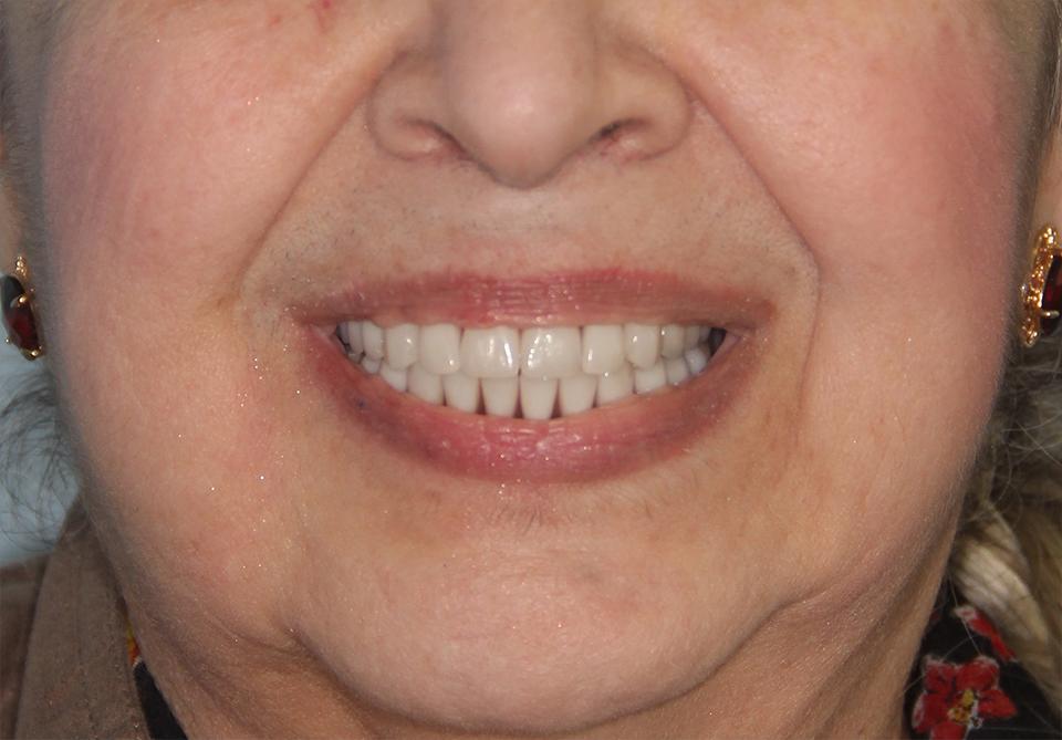 Зубы за 1 день по системе all on 4