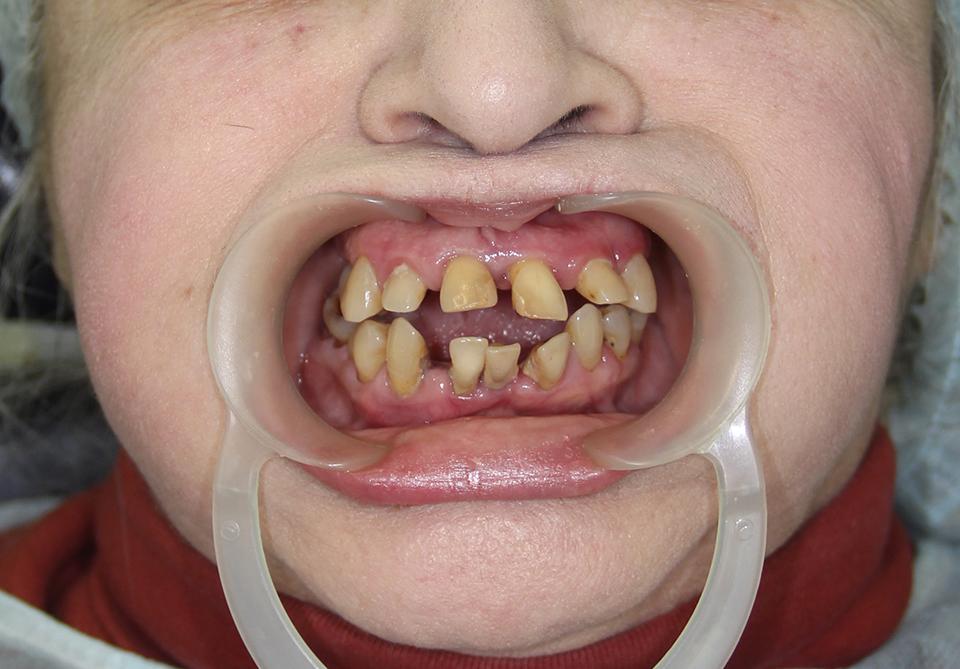 Зубы за 1 день