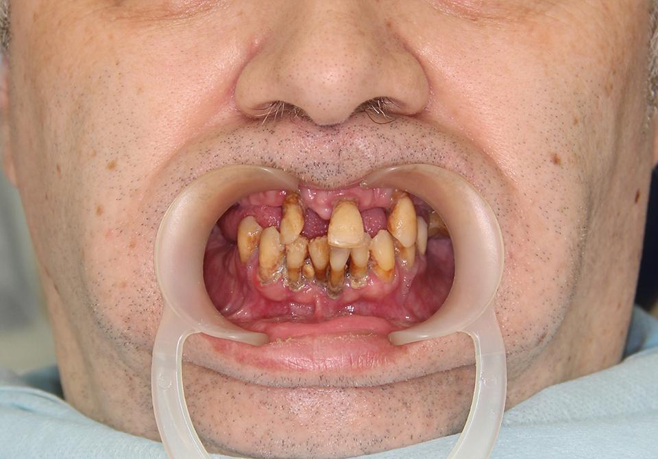 Зубы за 1 день до установки all on 4