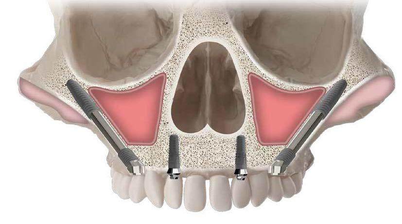 Скуловые имплантаты «Зигома»