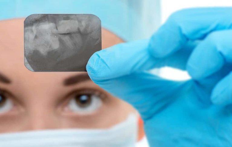 Рентгенографический снимок одного зуба