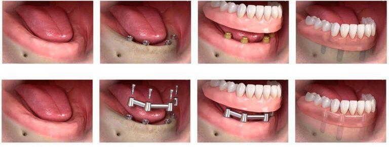 Имплантация и протезирование all-on-4