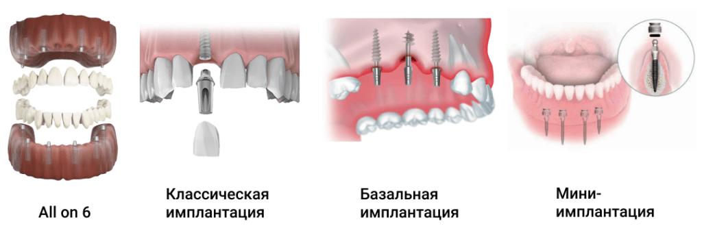 Виды имплантации