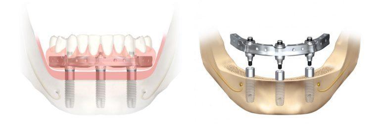 Система имплантации Trefoil