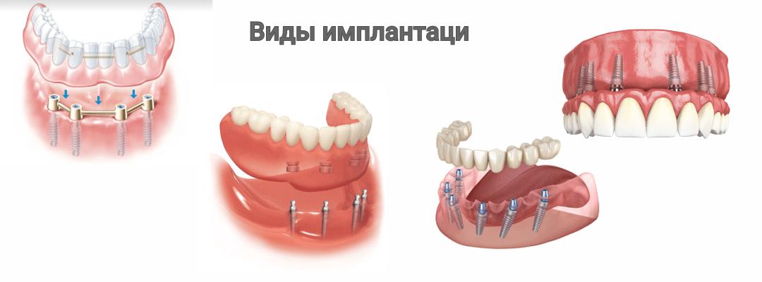 Виды имплантации при полном отсутствии зубов