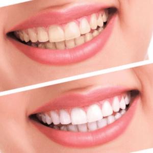 Вид зубов до установки виниров и после