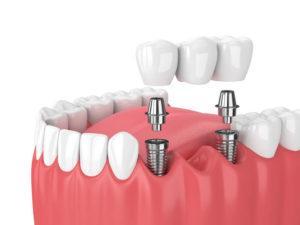 Зубной мост на импланте