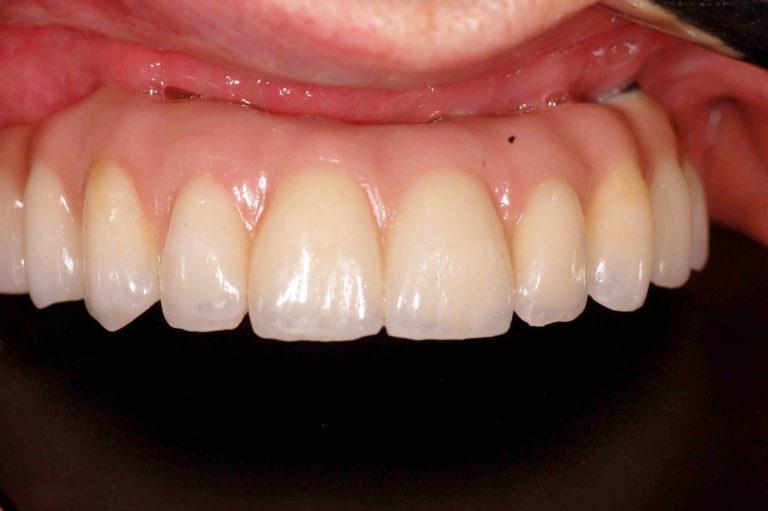 импланты и протез на верхней челюсти
