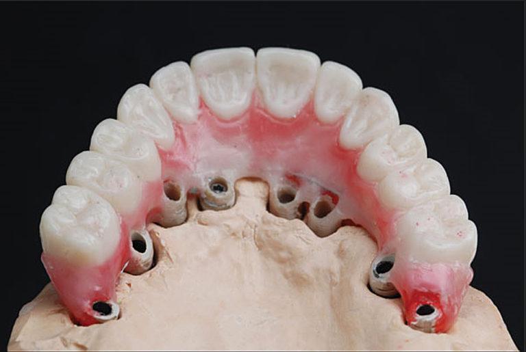 Несъемное протезирование на имплантах на всю челюсть