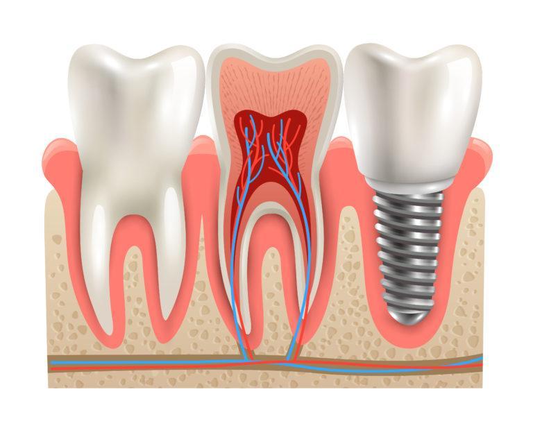 Зубной имплант после имплантации