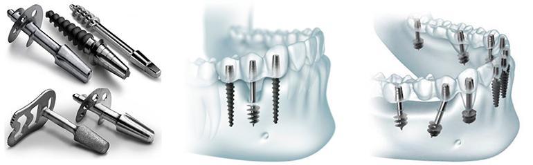 Имплантация без костной пластики