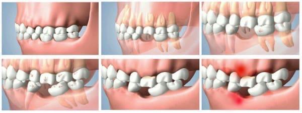 Каковы отличительные черты съемного протезирования зубов?