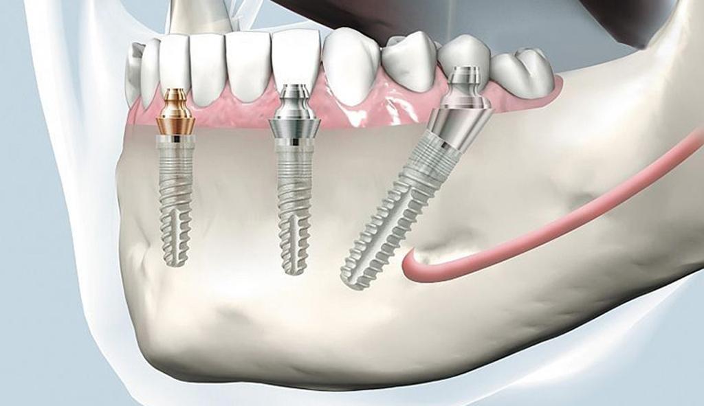 сколько времени занимает имплантация зубов