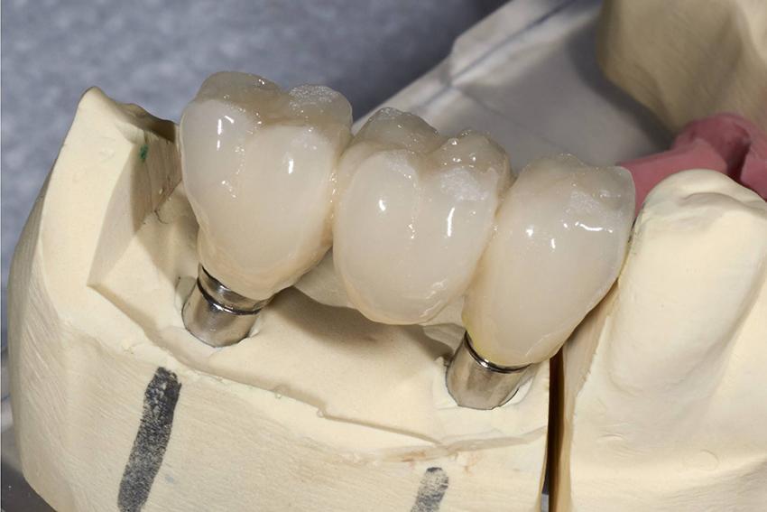 Имплант или протез