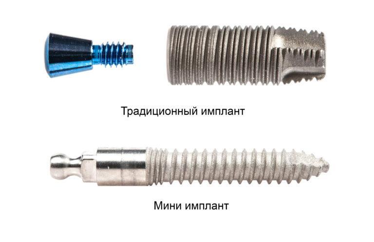 Мини имплант и традиционный в сравнении