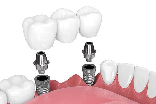 Зубной мост на имплантах