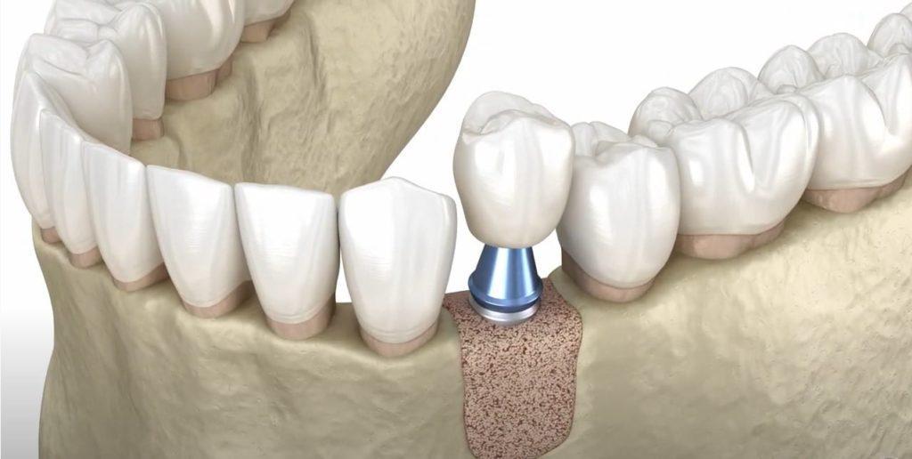 Установленный зубной имплант