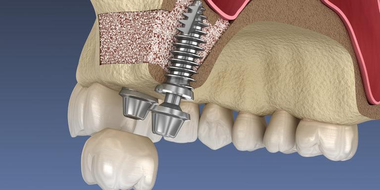 Синус подсадка костной ткани и установка импланта