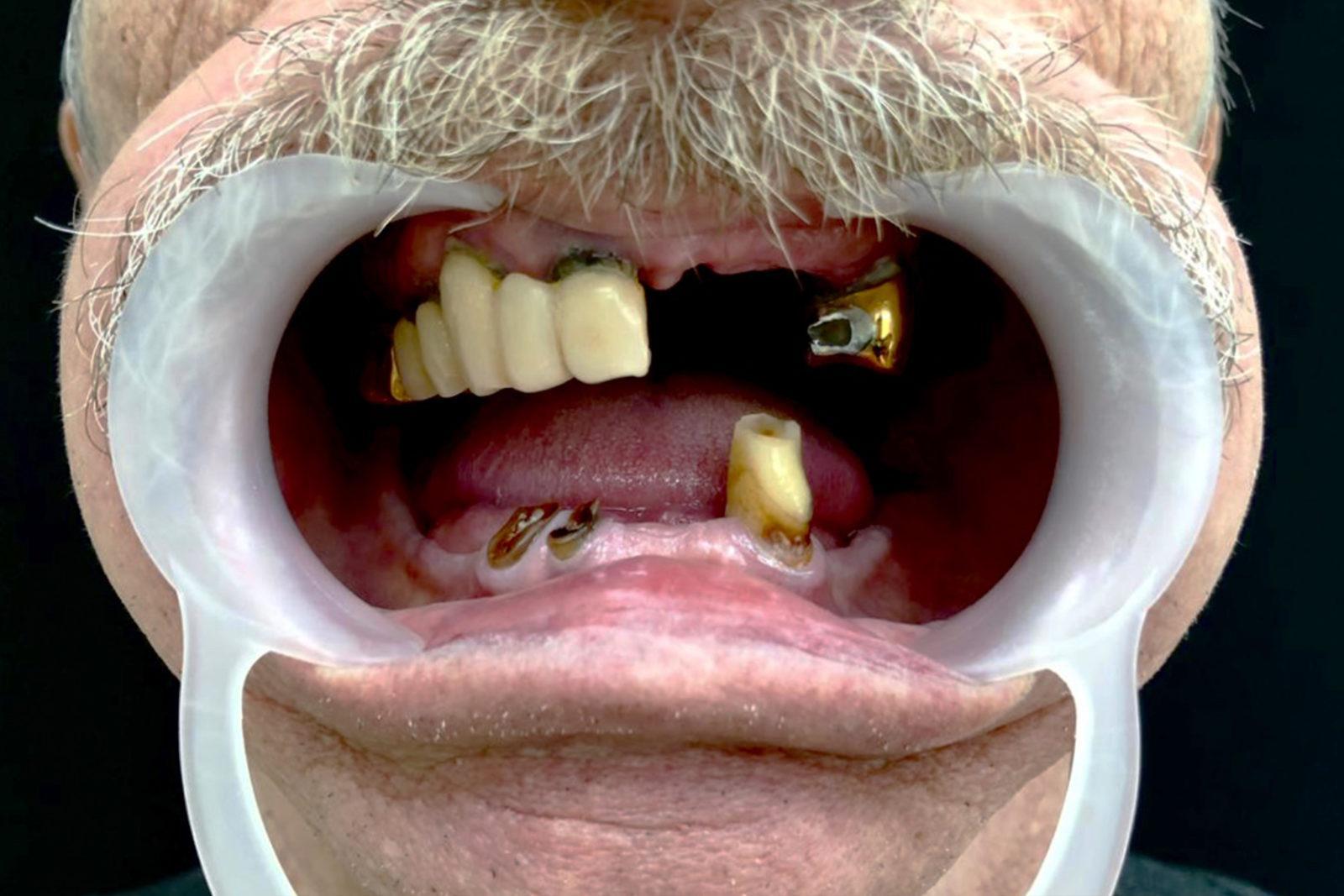 Рот пациента до имплантации зубов