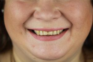 Пациент центра хирургической стоматологии после установки зубного импланта