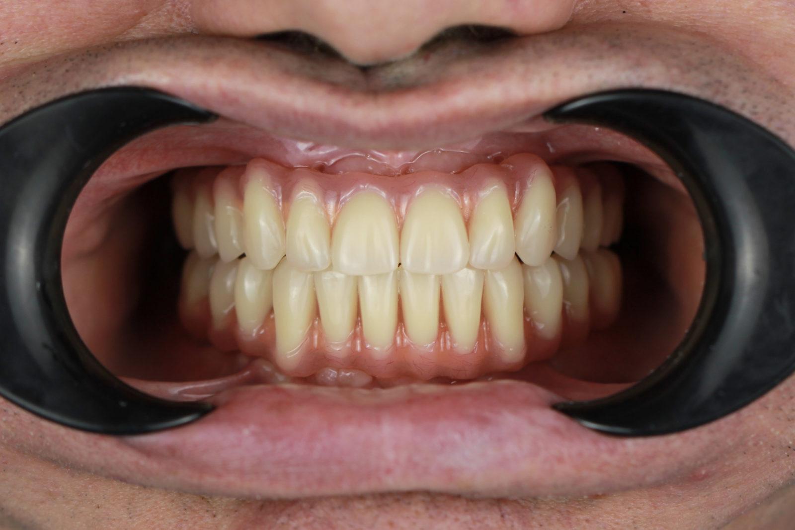После установки имплантов и протезов на обе челюсти