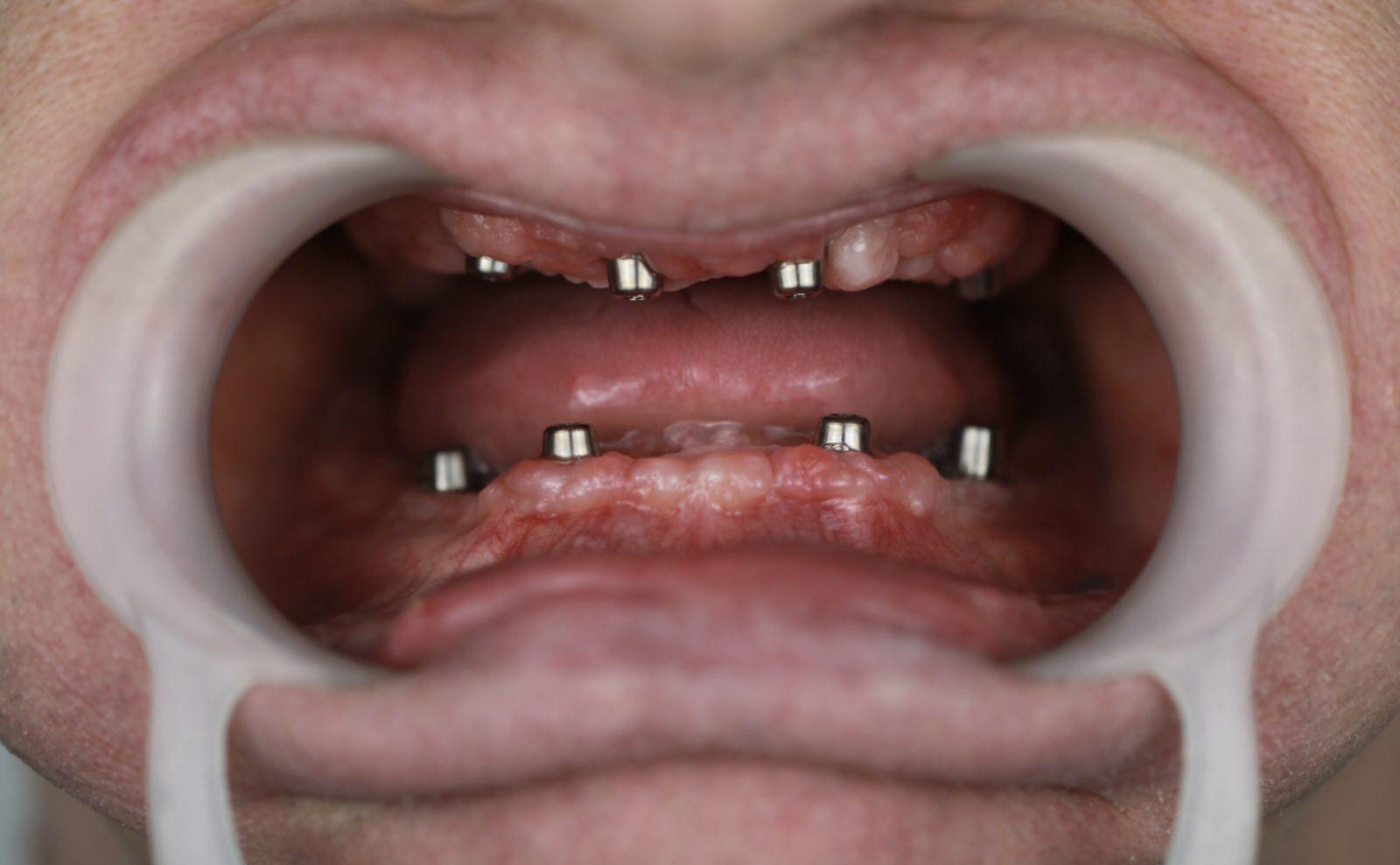 Установлены четыре импланта под систему All on 4