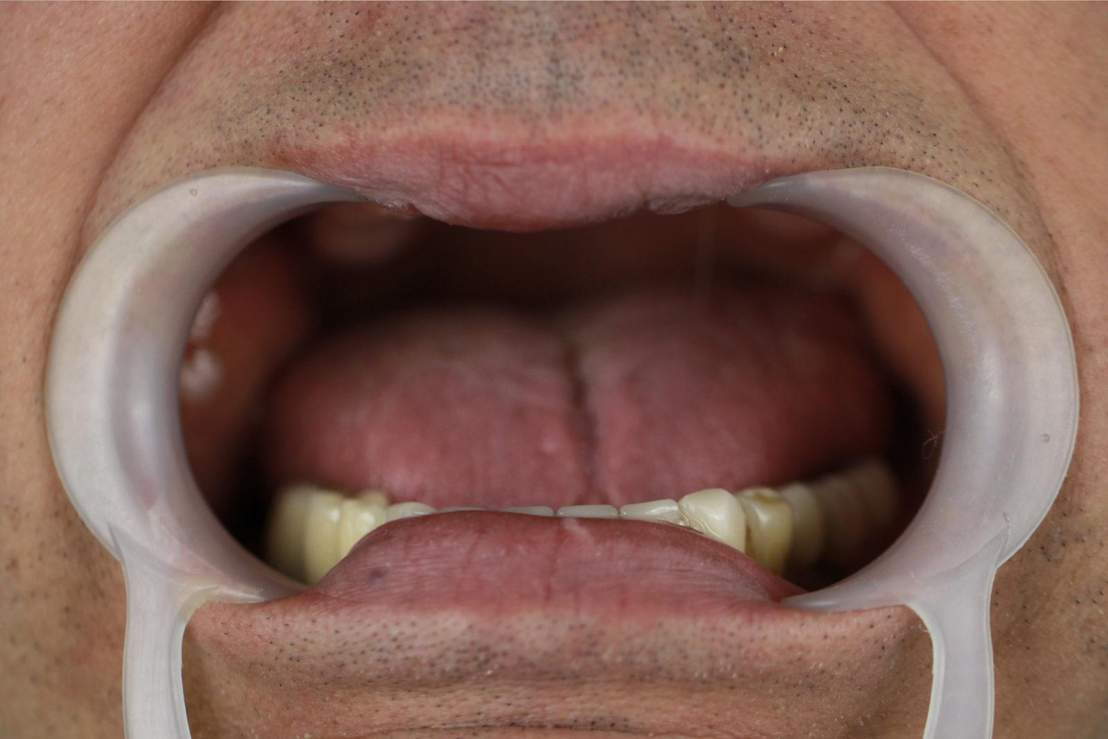 Ротовая полость до имплантации зубов с последующим протезированием