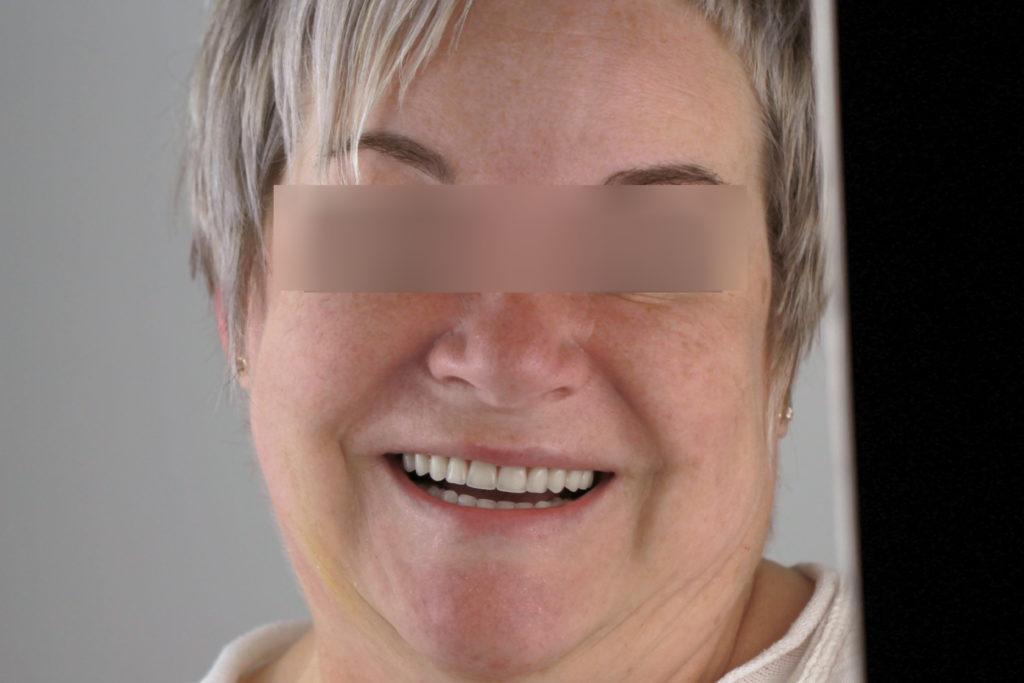 Пациент стоматологии после имплантации All on 4