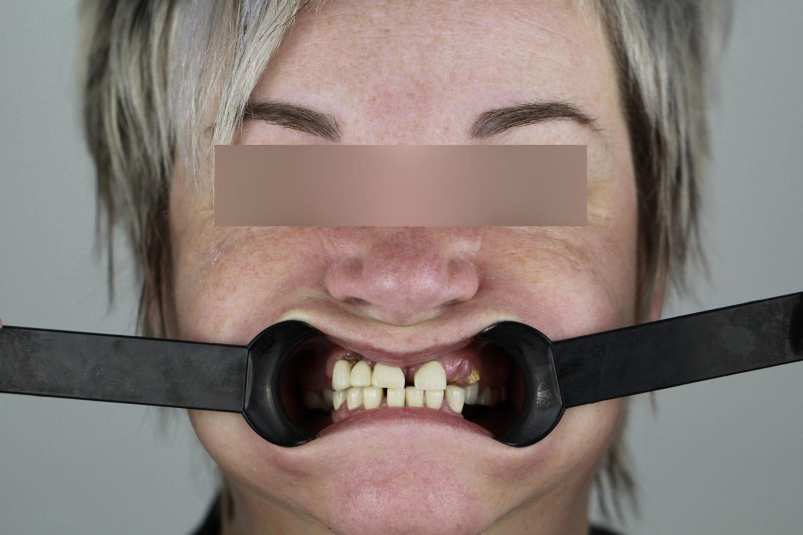 Пациент стоматологии до имплантации All on 4