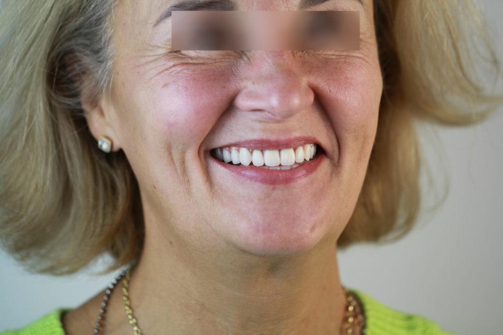 Пациентка стоматологии ЦХС после установки All on 4