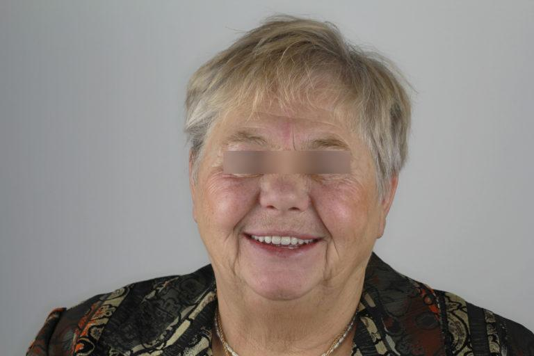 Пациент стоматологии после имплантации All on 4 на обе челюсти