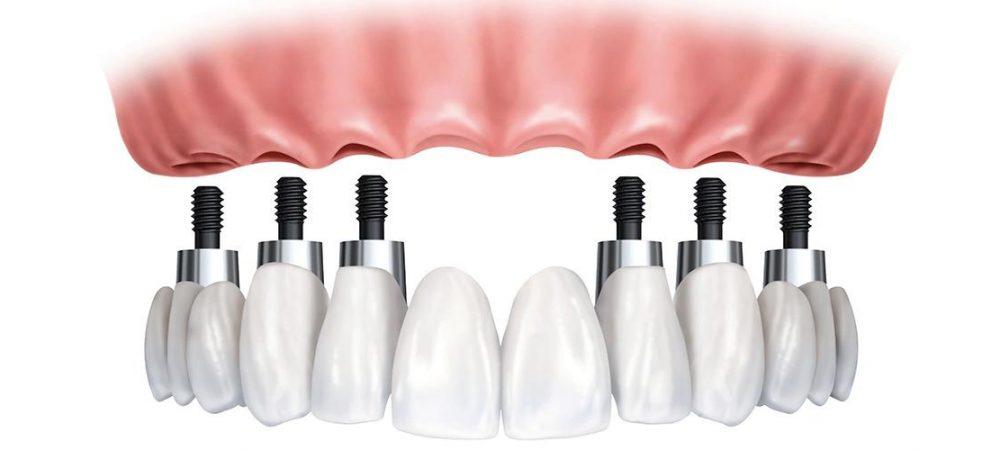 нюансы имплантации верхней челюсти