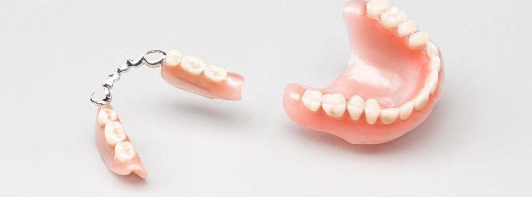 Классическое протезирование зубов