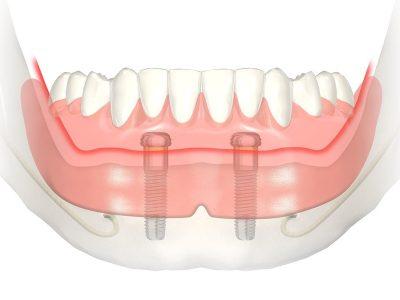 Полные зубные съемные протезы
