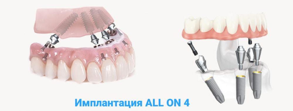 Процедура имплантации зубов all on 4