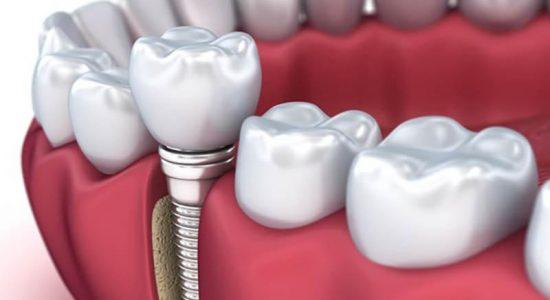 Экспресс имплантация одного зуба