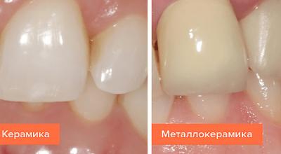 Керамические и металлокерамические зубные протезы