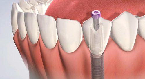 Классическая имплантация одного зуба